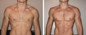 somatodrol przed i po
